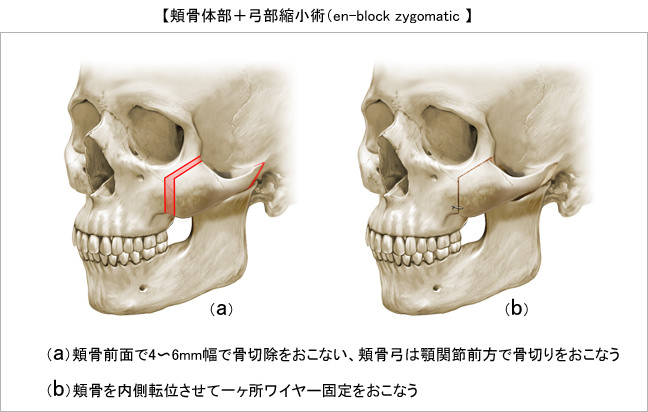 3)頬骨体部+弓部縮小術(en-block zygomatic osteotomy)
